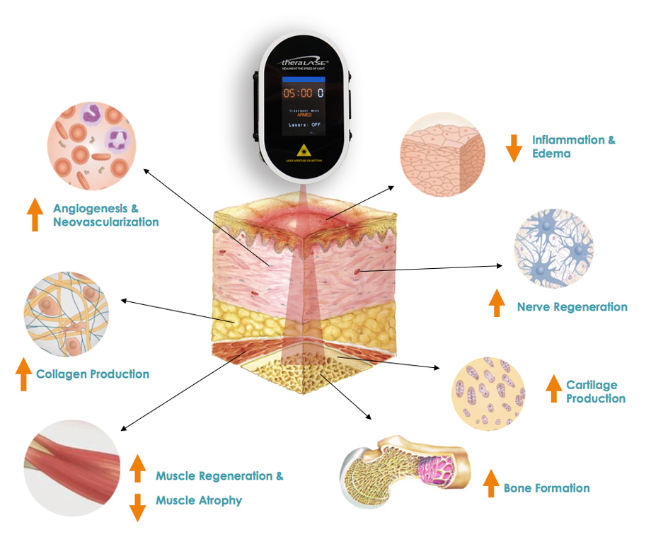 Advanced therapeutic laser technology