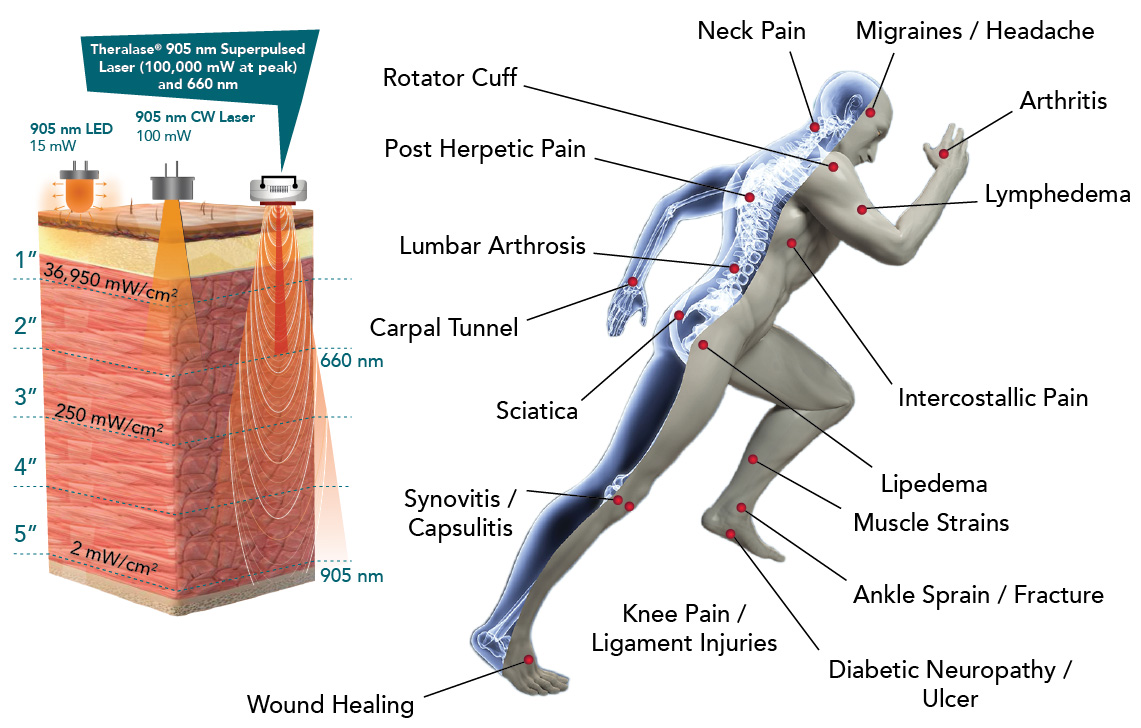 Theralase therapeutic lasers for chiropractors